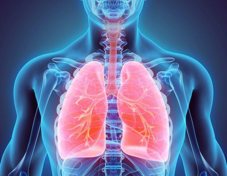 que es la peste pulmonar